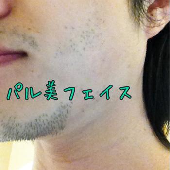 ケノン使用前のパル美の髭
